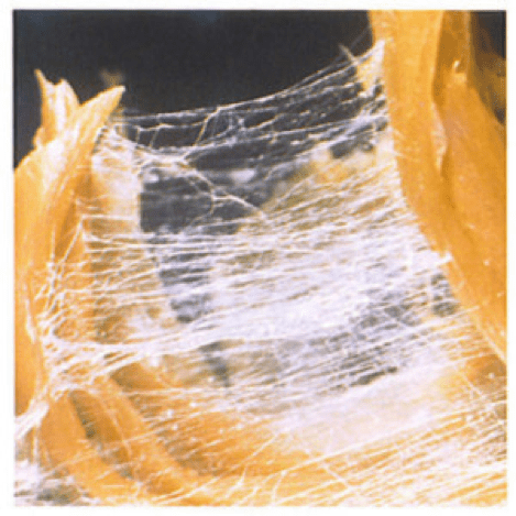 Fascia - the glue of our body